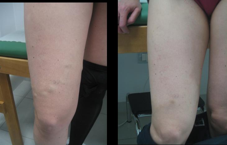 Trattamento di varicosity le risposte laser con una fotografia